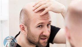 دراسة حديثة تكشف عن علاج محتمل للصلع
