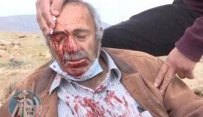 إصابة مسن ونجله بجروح إثر اعتداء المستوطنين على مزارعين في خربة الطويل شرق نابلس